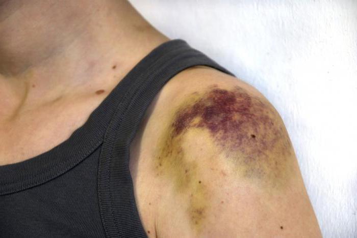 Геморрагии - это что такое? Виды, причины и лечение. Подкожные геморрагии. Синяк после укола