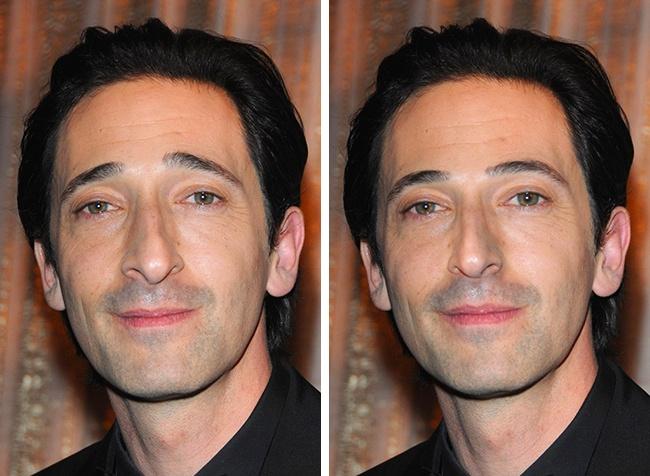 Как бы выглядели мировые знаменитости, если бы их лишили самой главной «изюминки» во внешности