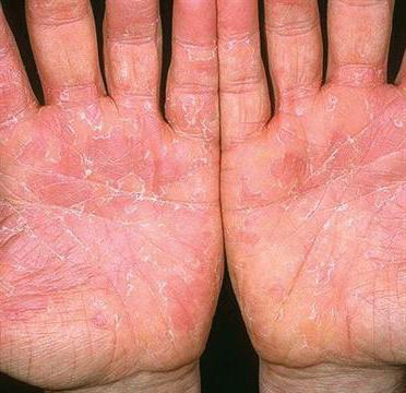 Эксфолиативный дерматит фото