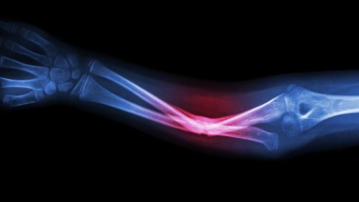 Ложный сустав: описание, диагностика и лечение