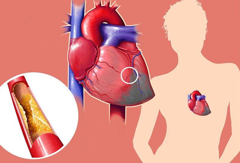 высокий холестерин у женщин диета