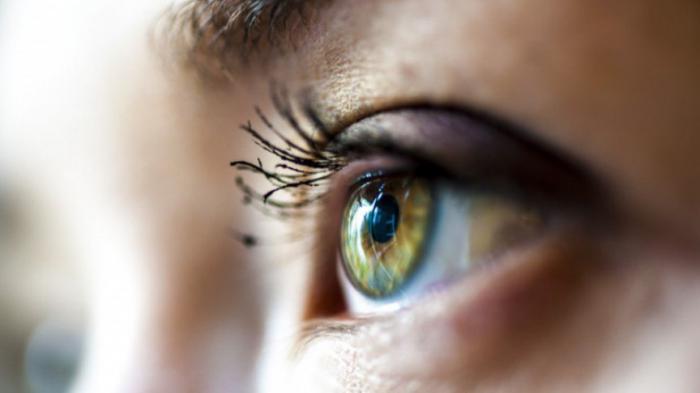 Можно ли избавиться от темных кругов под глазами?