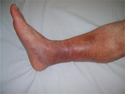 Тромбофилия - что это такое? Тромбофилия: причины, симптомы, диагностика и лечение