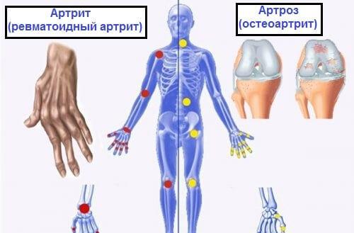 Это нужно знать: Разница между артрозом, артритом и остеопорозом