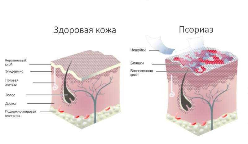 Эти 6 натуральных средств помогут при псориазе