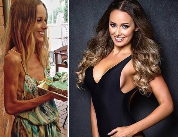 До и После: 15 фото людей, которые победили анорексию