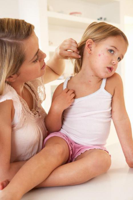 Пятна на шее красные пятна у ребенка: возможные причины и особенности лечения