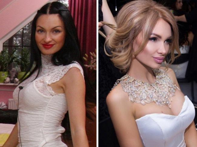 12 российских светских львиц до и после пластики. Это же совсем другие лица!