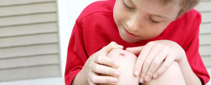 Почему вы чувствуете жжение, когда обрабатываете рану антисептиком?