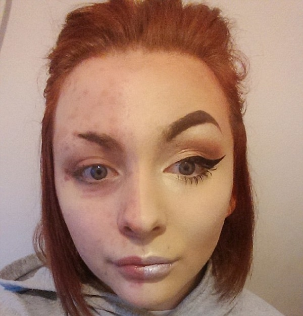 Когда ее парень узнал об этом, он ее бросил... Под слоем макияжа эта девушка скрывает страшную болезнь.