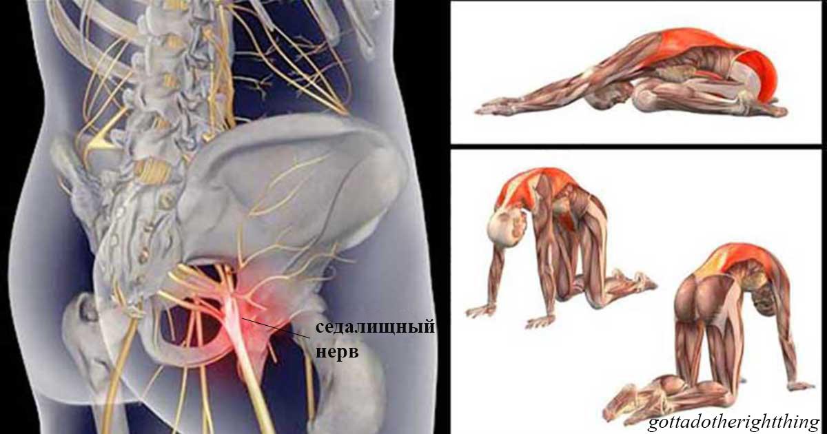 11 упражнений, которые избавят вас от боли в спине , когда воспалился седалищный нерв