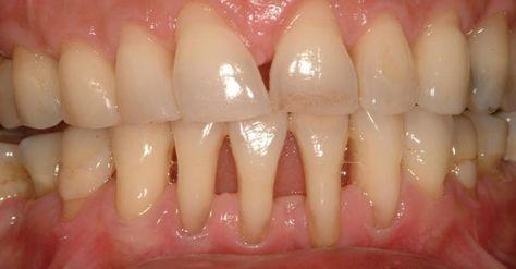 Заметили оголение шейки зуба? Что нужно сделать!