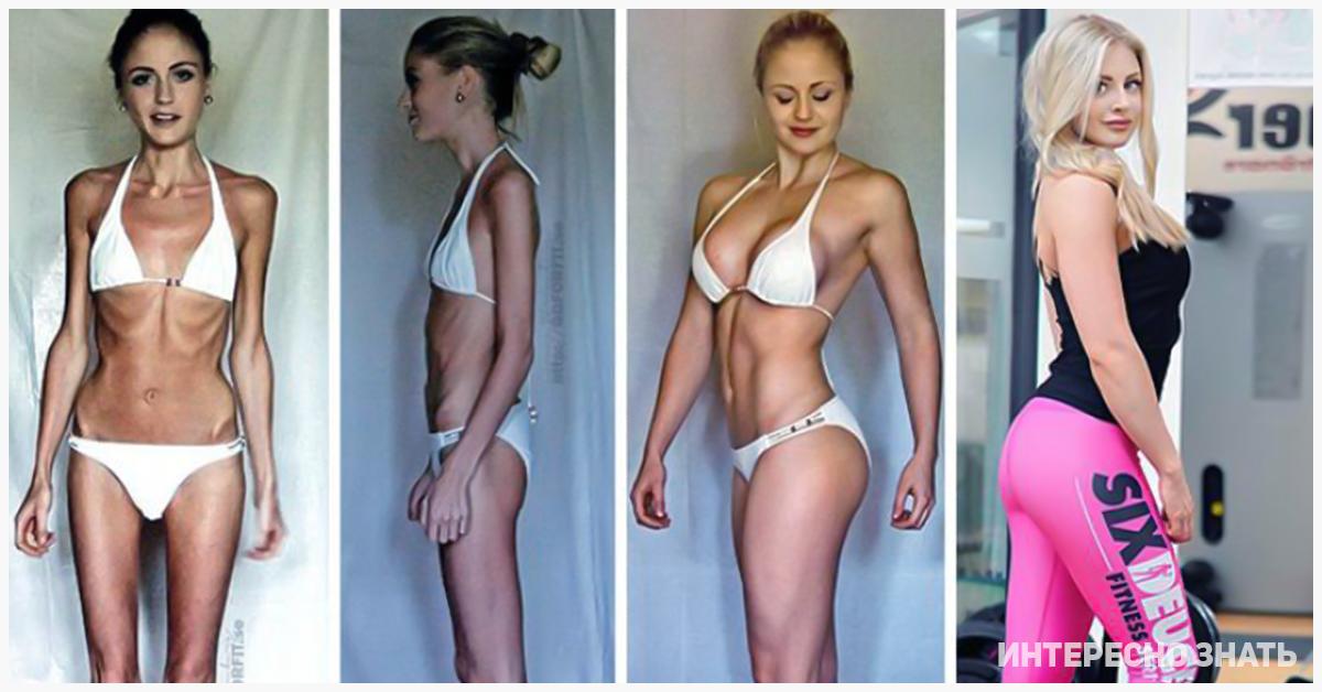 Как Называется Болезнь Похудения. Как называется болезнь похудения