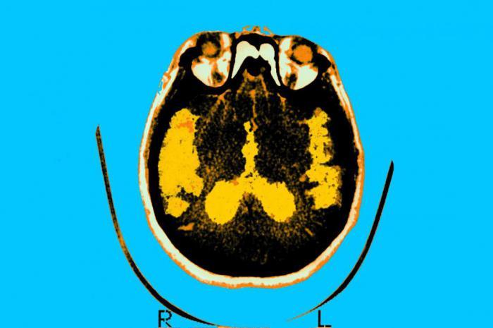 Неужели болезнь Альцгеймера начинается у человека в детстве?